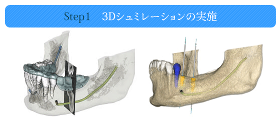 Step1 3Dシュミレーションの実施